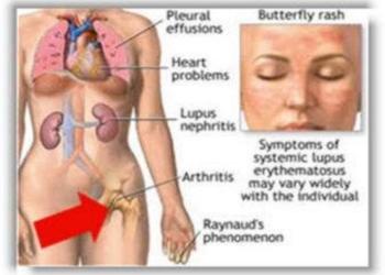 criterios diagnsticos de enfermedades reumatoideas