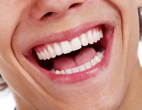 man with open mouth smiling