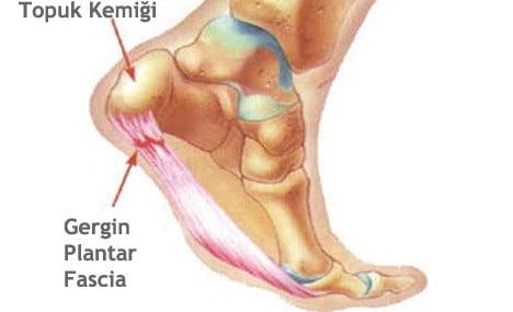 topuk ağrıları