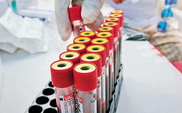 Hangi kan grubu daha şanslı?