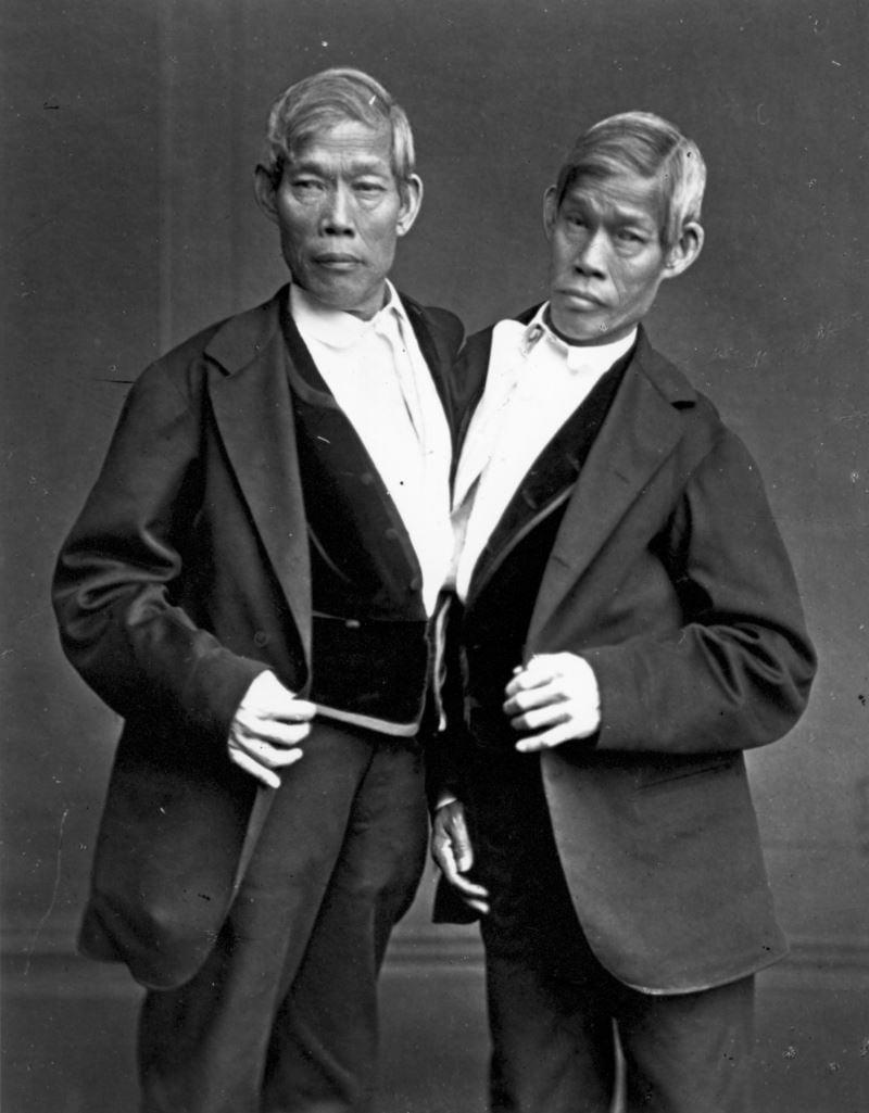 Siyam ikizleri ne demek? Ne anlama geliyor?