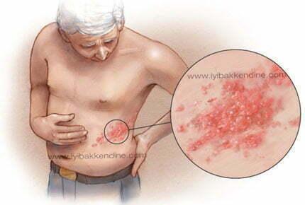 zona hastalığı shingles