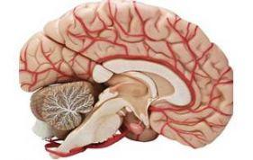 beyin krizi