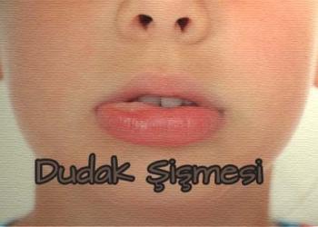 dudak sismesi