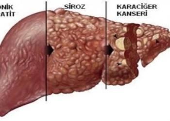 karaciger hastaliklari